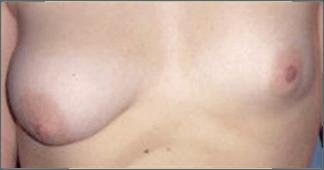 asimetria mamaria tipo 3