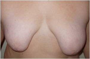 asimetrias mamarias tipo 6