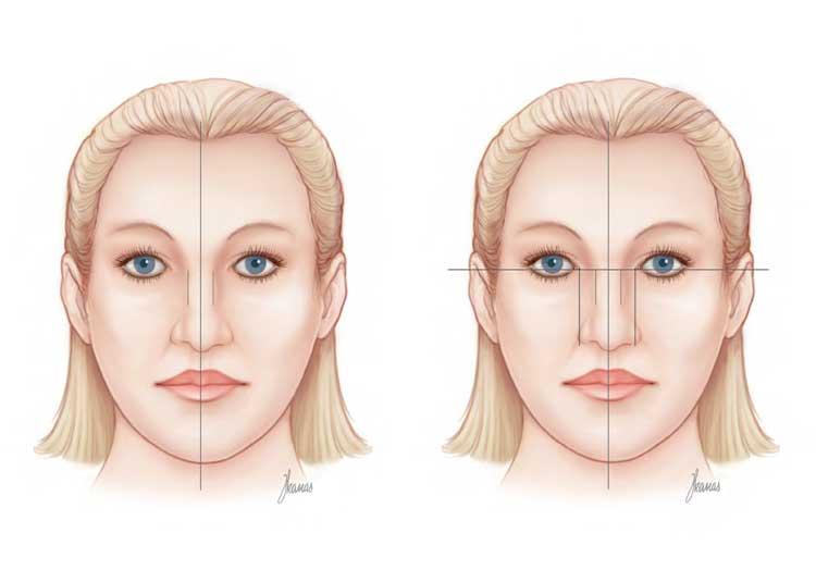 explicacion-rinoplastia-frontal
