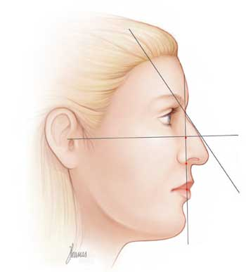 explicacion-rinoplastia-latera.ljpg