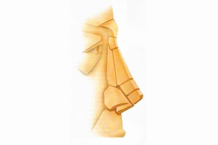 partes-de-la-rinoplastia