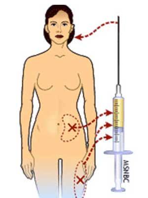 extraccion-lipofilling
