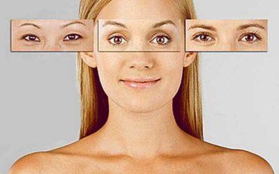 Blefaroplastia y Tipos de Miradas