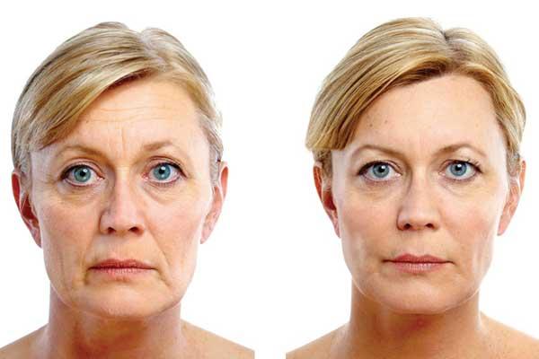 lifting-facial-antes-y-despues