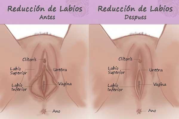 reduccion-labios-antes-y-despues