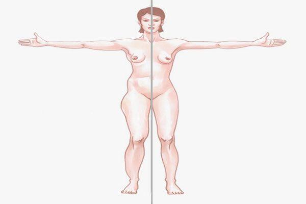 zonas-liposuccion