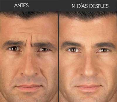 botox-hombres-antes-y-despues-