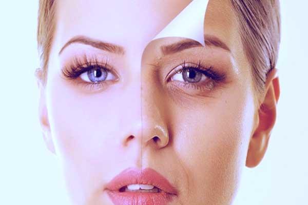 botox-rejuvenecimiento