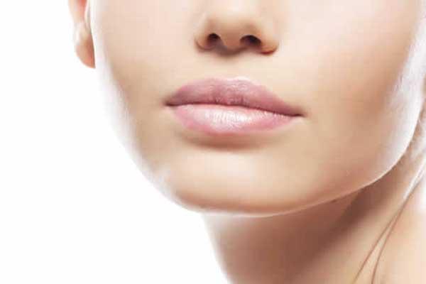 relleno-arrugas-labios-botox