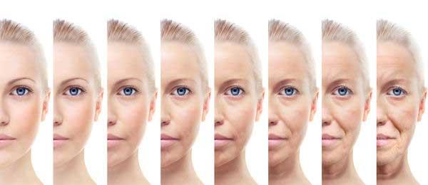 signos-envejecimiento-botox