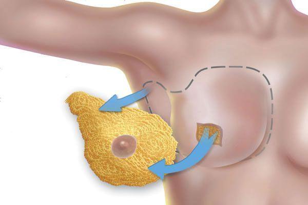 Mastectomia-subcutanea