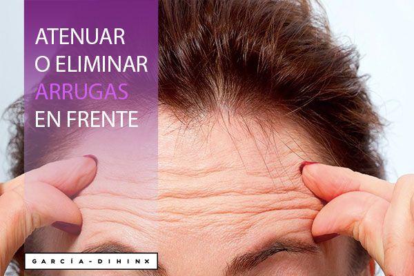 Atenuar-eliminar-arrugas-en-la-frente