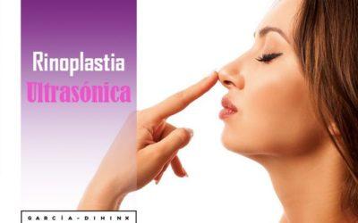 Rinoplastia Ultrasónica: Ventajas del tratamiento
