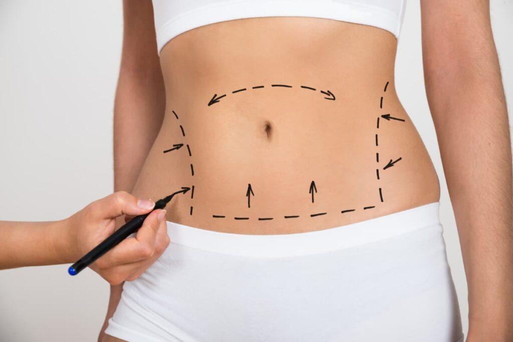 abdominoplastia-zaragoza